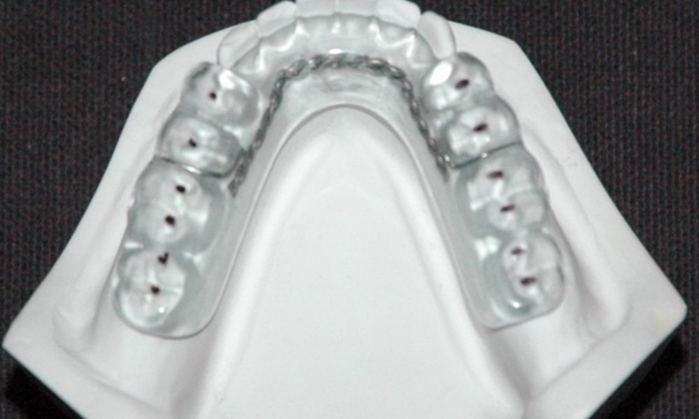 Ortho_PORT_2